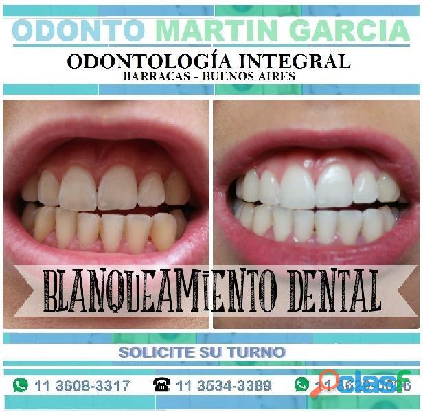 Blanqueamiento Dental Rápido, efectivo y sin dolor