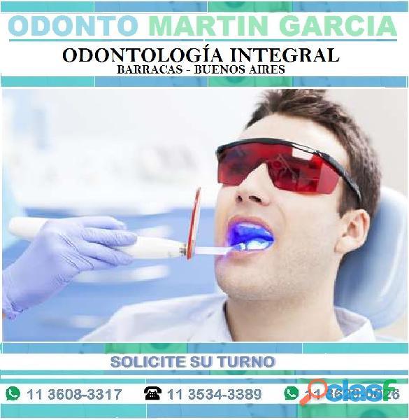 Blanqueamiento Dental Rápido, efectivo y sin dolor 1