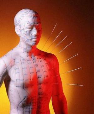 Curso de acupuntura presecial o a distancia