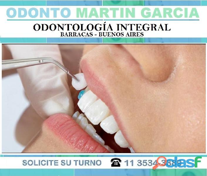 Carillas Dentales Estéticas Consulta presencial $ 500