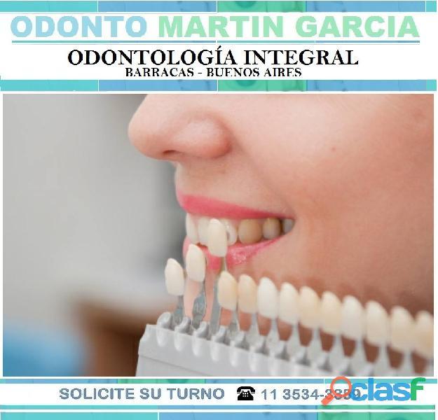 Carillas Dentales Estéticas Consulta presencial $ 500 1