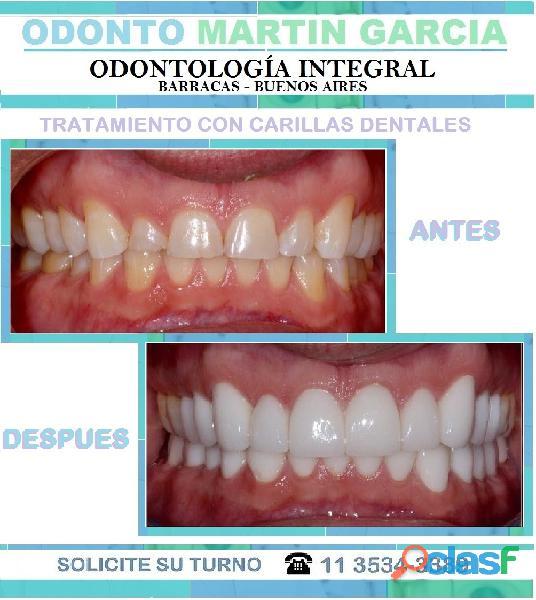 Carillas Dentales Estéticas Consulta presencial $ 500 2
