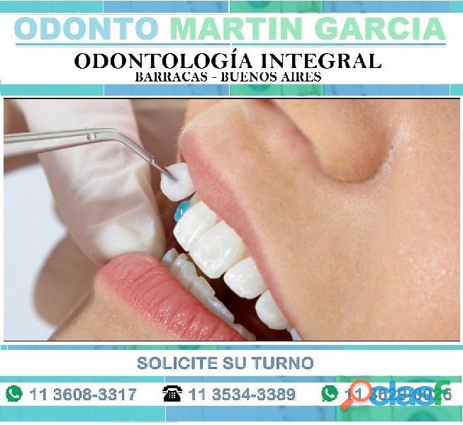 Carillas Dentales Super Estéticas e Imperceptibles !!!