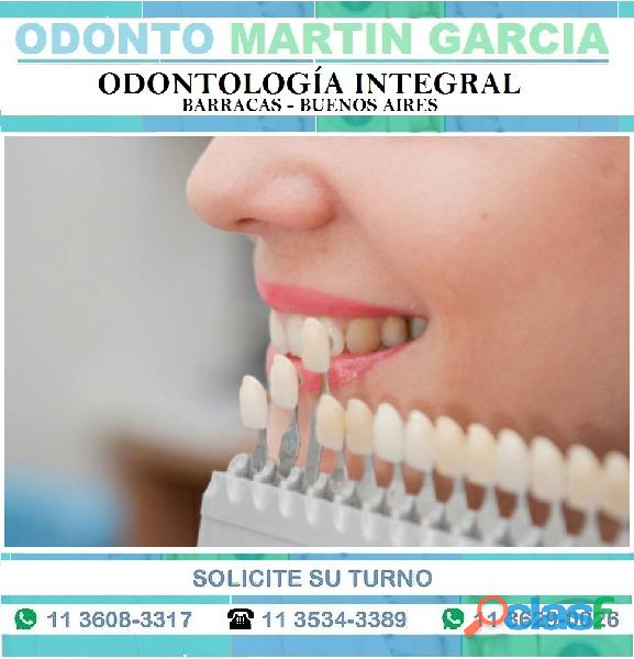 Carillas Dentales Super Estéticas e Imperceptibles !!! 9