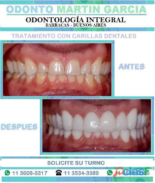 Carillas Dentales Super Estéticas e Imperceptibles !!! 8