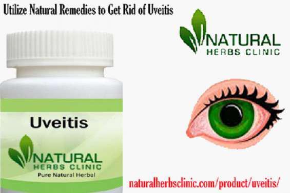 Utilize natural remedies to get rid of uveitis en El Bordo