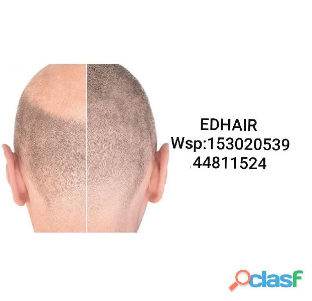 Protesis capilar (no massssss) edhair